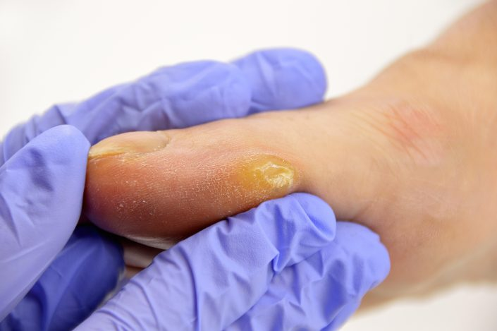 AdobeStock 144296314 705x469 - The Foot Health Care Specialist