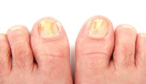 AdobeStock 41778942 300x173 - Fungal Nail Care, Athlete's Foot Care and Treatment